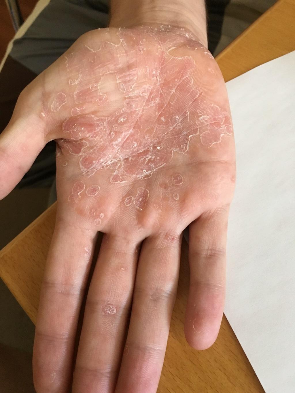 Flecken penis rote Balanitis: Entzündung